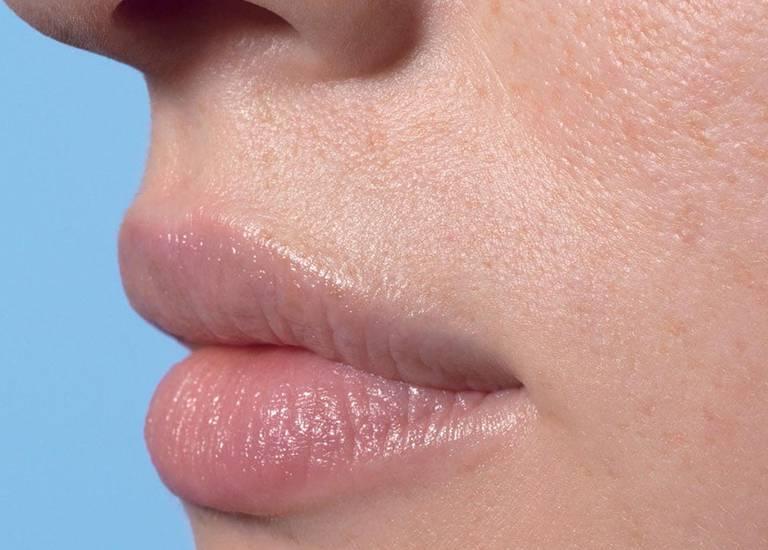 La Roche Posay By Need Face Care Lip Care