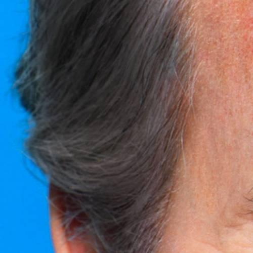 Larocheposay SubCategoryPage Damaged Burnt skin